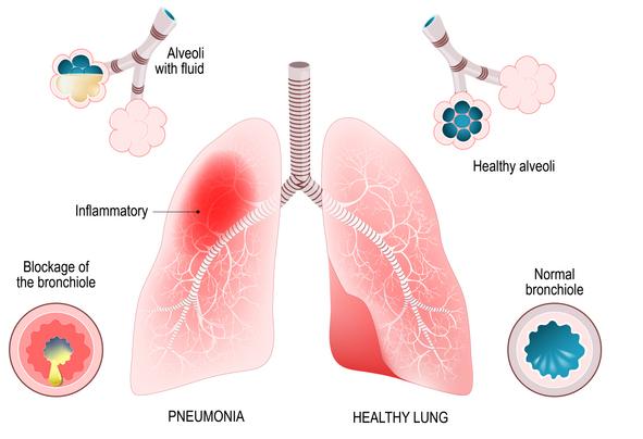 zapalenie płuc pneumonia